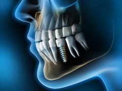 implantes dentales 2 abedent clinica dental.jpg