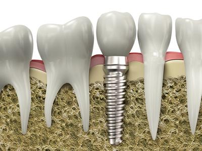 implantes dentales abedent clinica dental.jpg