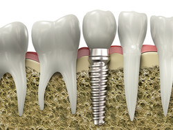 implantes dentales abedent clinica dental.jpg