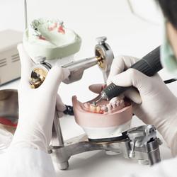 reparacion protesis abedent clinica dental.jpg