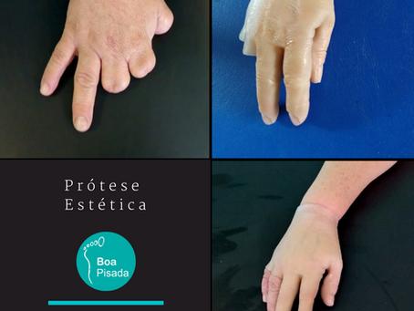 Prótese Estética de Mão