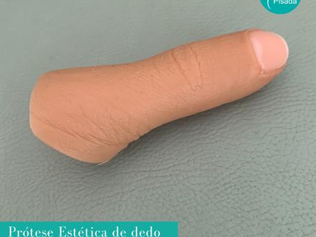 Prótese de dedo