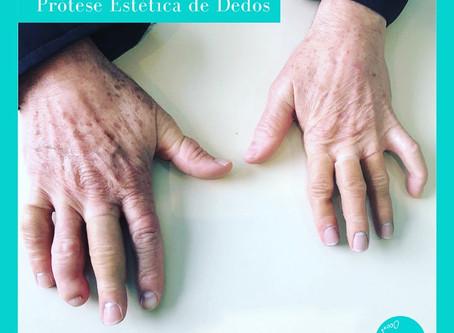Prótese estética de dedos