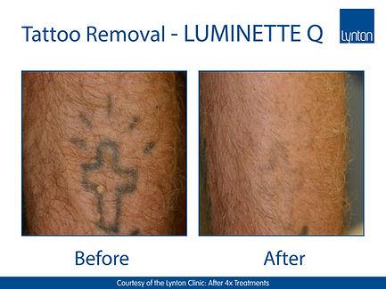 LUMINETTE Q - Cross - The Lynton Clinic.