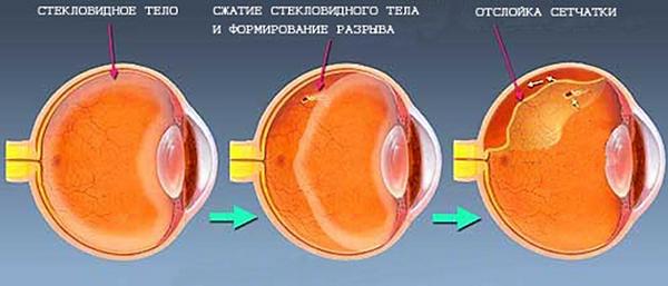 стадии формирования отслойки сетчатки