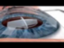 планируемое разделение на фрагменты при фемтосекундной лазерной хирургии катаракты
