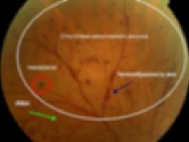 изменения сосудов сетчатки при препролиферативной диабетической ретинопатии