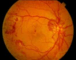 новообразованные сосуды диска зрительного нерва, сетчатки