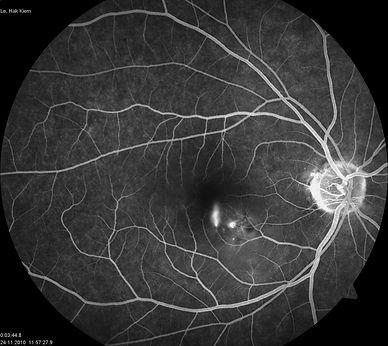 флуоресцентная ангиография при центральной серозной хориоретинопатии