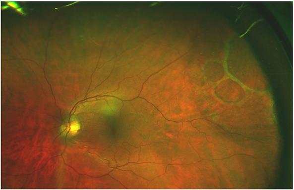 сенильный ретиношизис