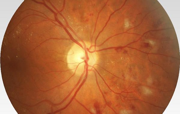 ватообразные очаги при пролиферативной дабетической ретинопатии