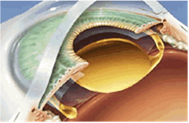 расположение интраокулярной линзы в капсульном мешке