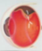 внутриглазная жидкость попадает под сетчатку и формирует отслойку сетчатки
