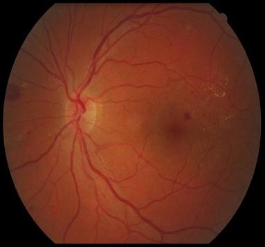 препролиферативная диабетическая ретинопатия