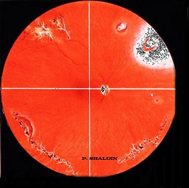 периферические дистрофии сетчатки