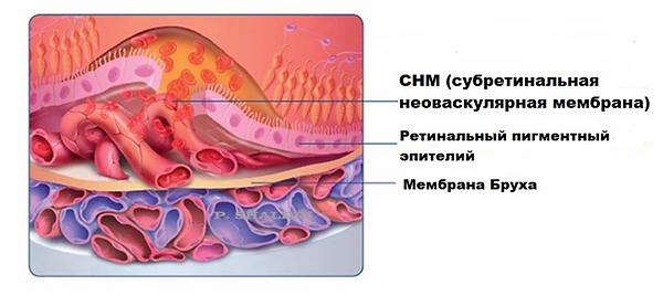 субретинальная неоваскулярная мембрана при ВМД