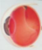 задняя отслойка стекловидного тела спровоцировала разрыв сетчатки с