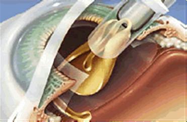 имплантация интраокулярной линзы