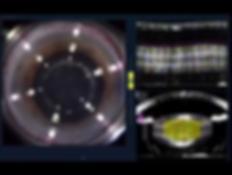 вид рабочего поля в момент фемтосекундной лазерной хирургии катаракты