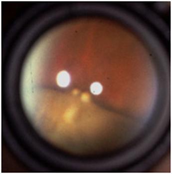 ретинальный пучек