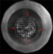 вид катаракты после этапа фрагментации лазером