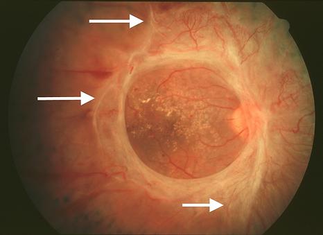 глиоз сетчатки при пролиферативной диабетической ретинопатии
