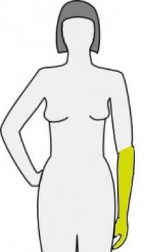 Unterarmprothesen
