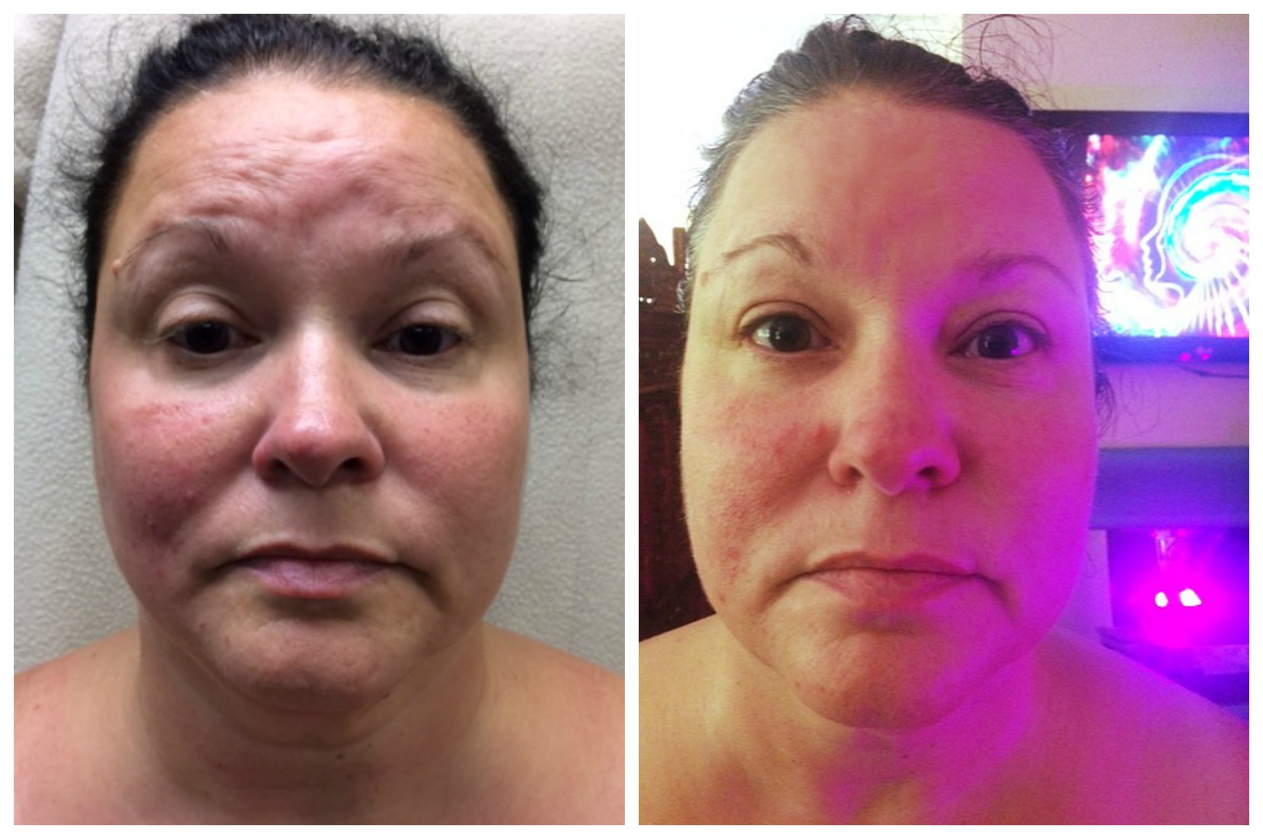 all natural face lift