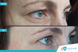 Resultaat QMS Medicosmetics eye correcto