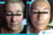 Resultaten QMS Medicosmetics behandeling