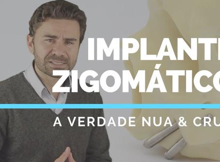 A Verdade Nua e Crua Sobre Implantes Zigomáticos