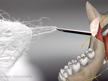 Trismo após anestesia local: Por que acontece, como prevenir e tratar