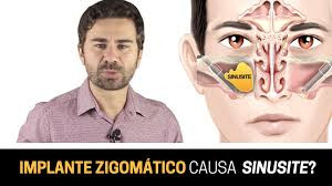 Implante Zigomático Causa Sinusite?