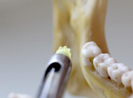 Bloqueio do Nervo Alveolar Inferior:  O passo-a-passo