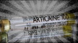 """O mito da Articaína: O anestésico """"perfeito"""""""