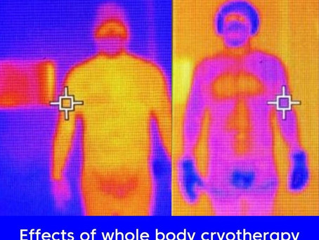 What is Cryotherapy? And why YOU should care