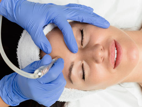 Microdermabrasion vs. Microneedling: Which One Is Best?