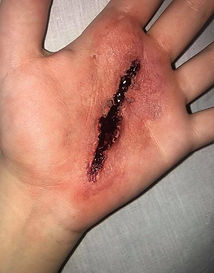 Cut on hand. Deep cut with blood on hand