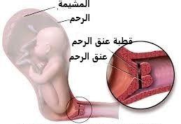 ما هي قطبة عنق الرحم