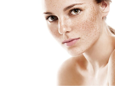 Pigmentation – what is it, and what to do about it?