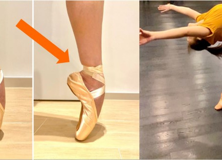 Foot and Ankle Injuries in Ballet, Contemporary and Chinese Dancers: Are they all the same? 不同舞蹈足踝傷患