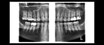 טבע-דנט-מכון-רנטגן-לצילומי-פה-ולסת.jpg