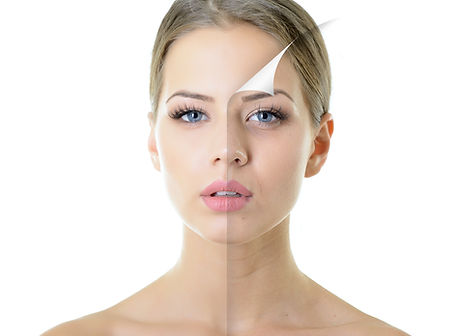 portrait of beautiful woman with problem and clean skin, aging and youth concept, beauty t