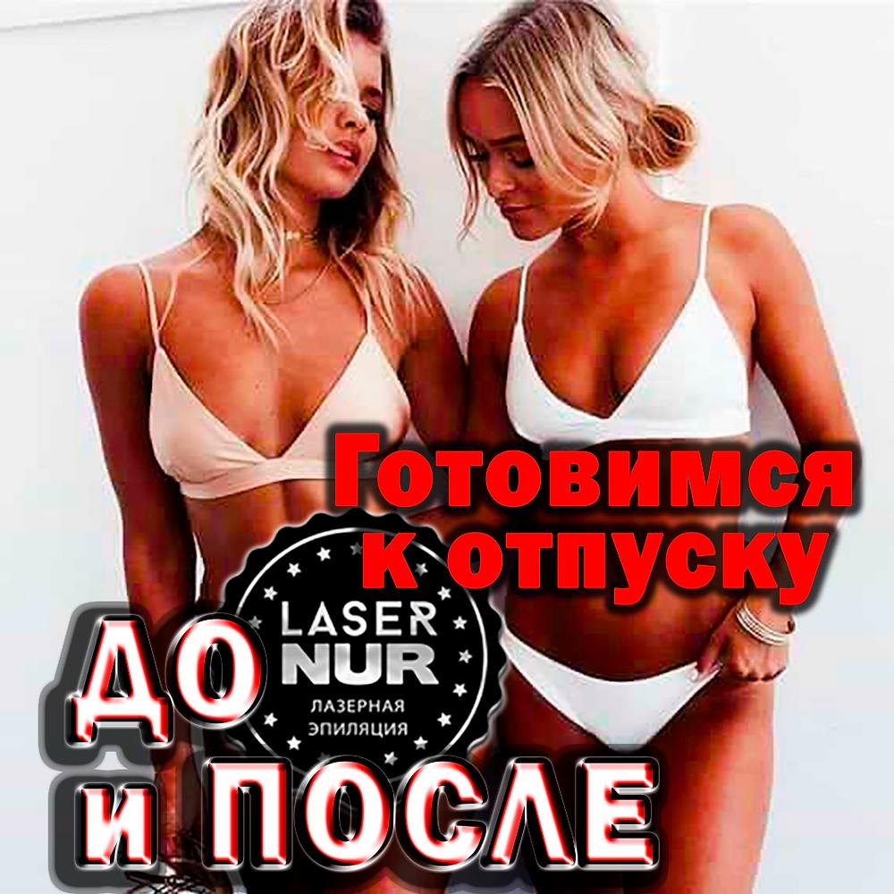 Лазерная эпиляция результат до и после процедуры Новый Уренгой Лазернур Lasernur салон косметологии