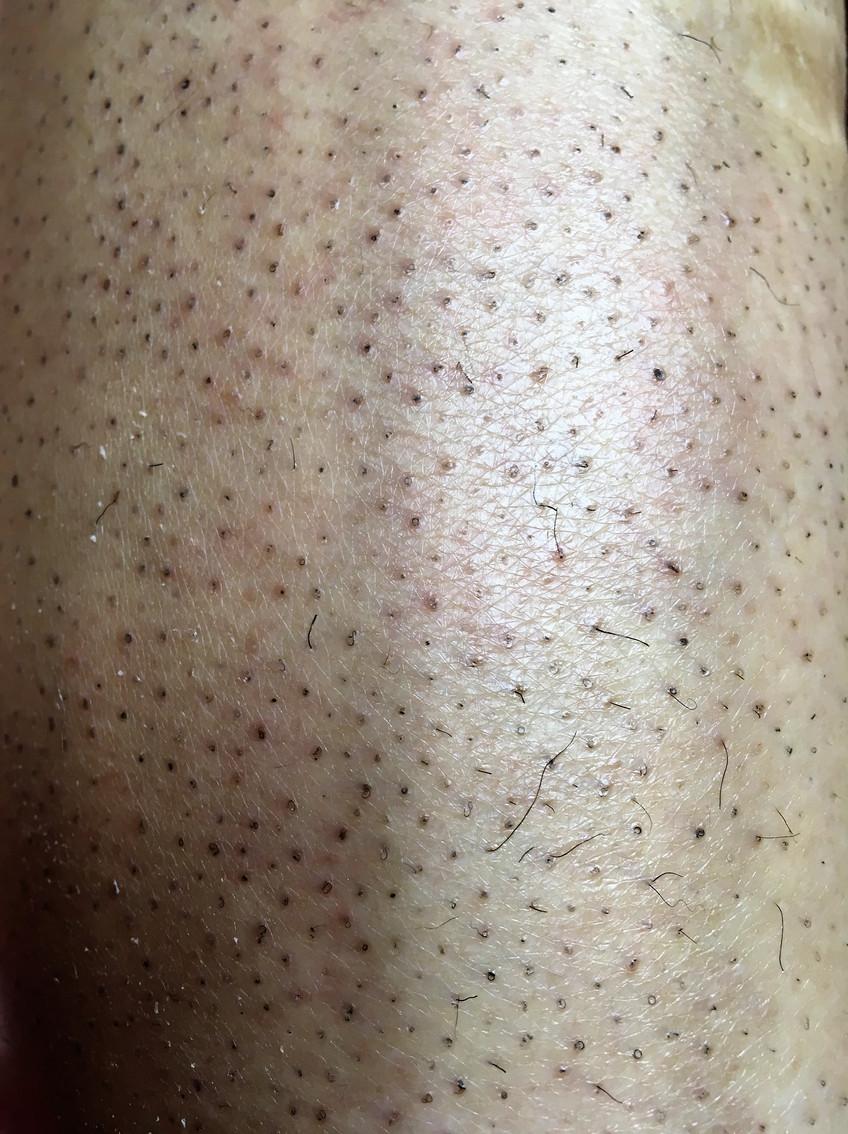Вросшие волосы на ногах лазерная эпиляция
