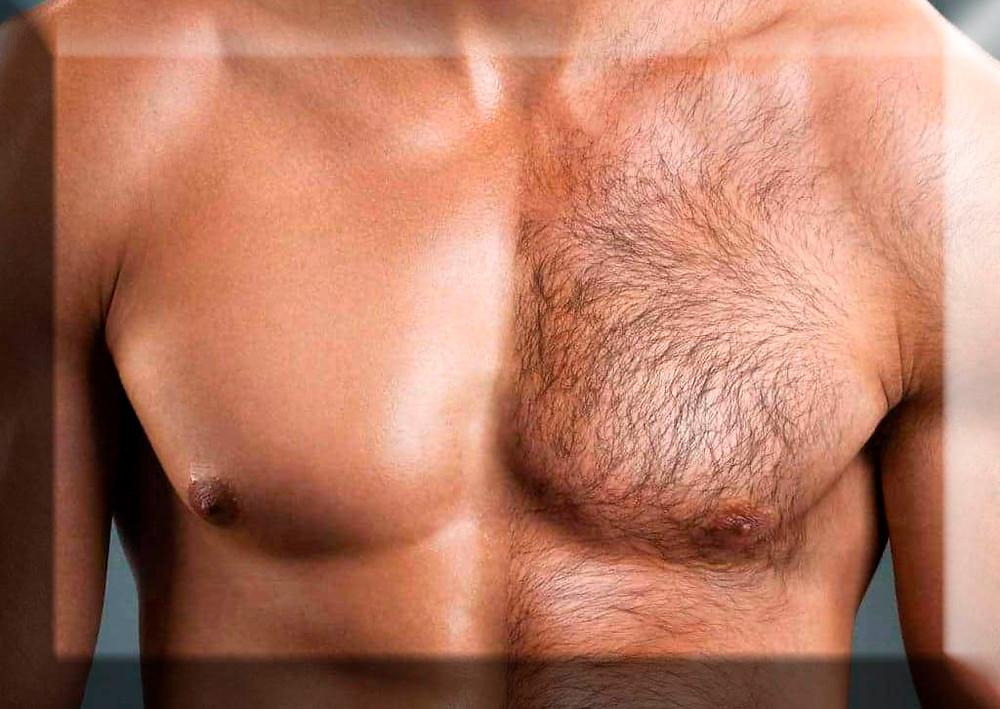 Мужская Лазерная эпиляция в Новом Уренгое. Удаление волос для мужчин