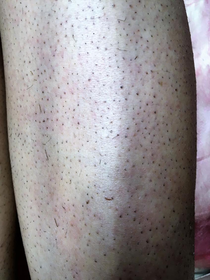 Огрубевшая кожа на ногах лазерная эпиляция Новый Уренгой Lasernur