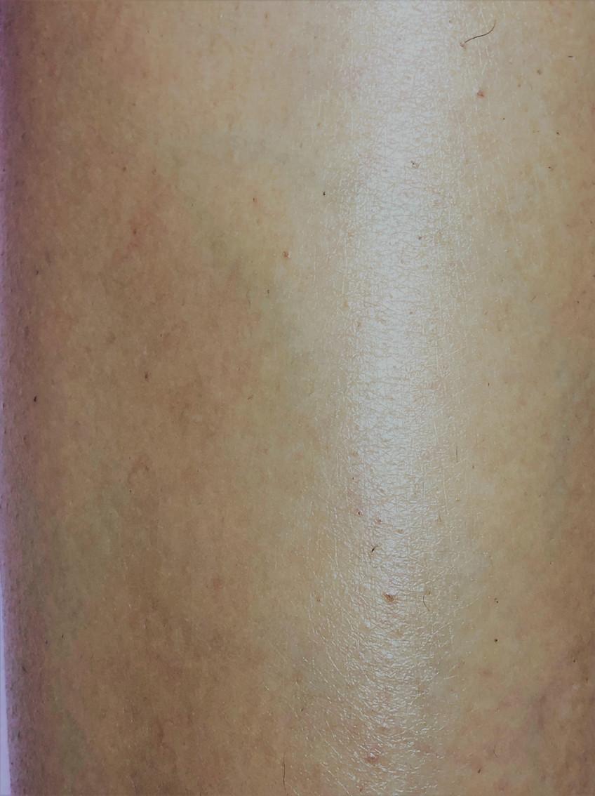 Результат после лазерной эпиляции Новый Уренгой Lasernur