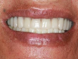 Dental Rehabilitation: