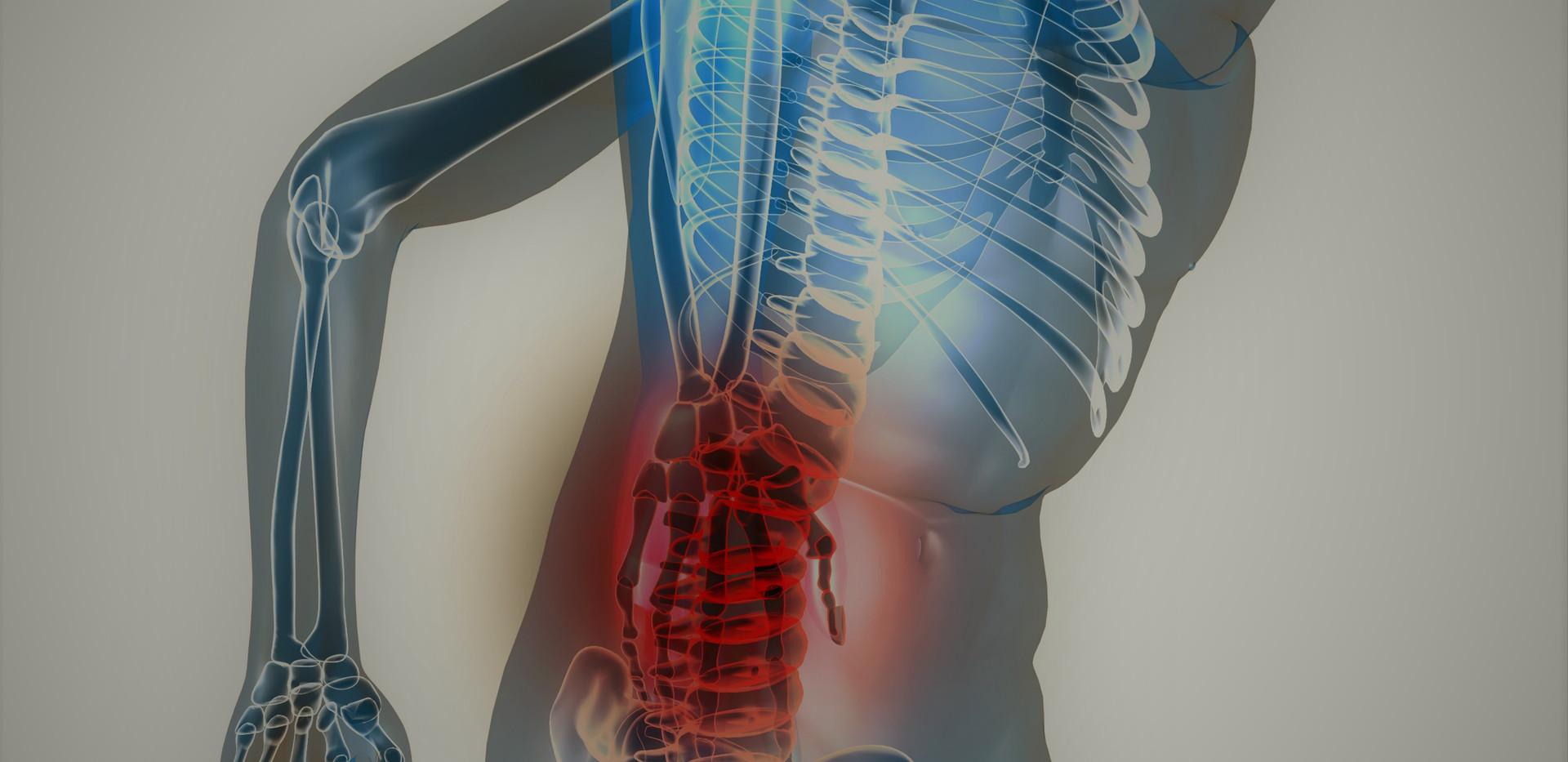 Chiropraxis Schwall, Chiropraktik und Osteopathie in Köln, Rückenschmerzen